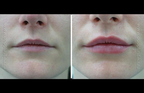 Пластика губы зачем делают 3